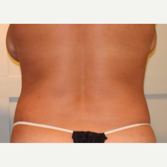 CoolSculpting Successfully Takes on Bra Roll and Love Handles after 2056989