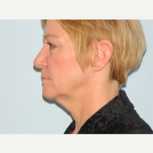 55-64 year old woman treated with Facelift before 3266373