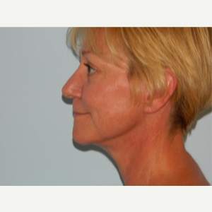 55-64 year old woman treated with Facelift after 3266373