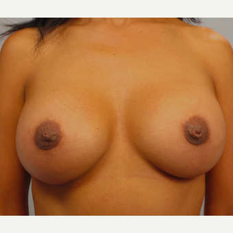 35-44 year old woman treated with Breast Augmentation after 3493267