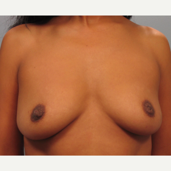 35-44 year old woman treated with Breast Augmentation before 3493267