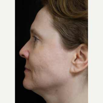 45-54 year old woman treated with Sculptra