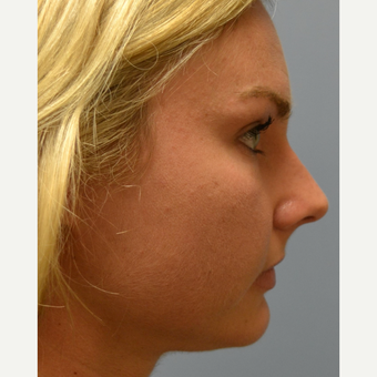 25-34 year old woman treated with Rhinoplasty before 3837671