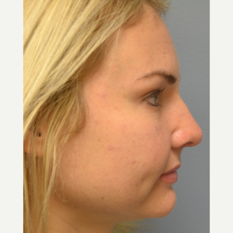 25-34 year old woman treated with Rhinoplasty after 3837671
