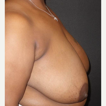 35-44 year old woman treated with Breast Reduction before 3446984