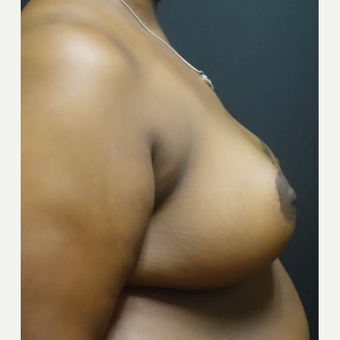 35-44 year old woman treated with Breast Reduction after 3446984