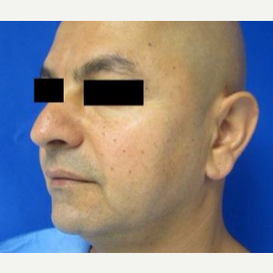 Chin Implant before 3164301