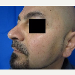 Chin Implant after 3164301