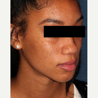 18-24 year old woman treated with PicoWay after 3244573