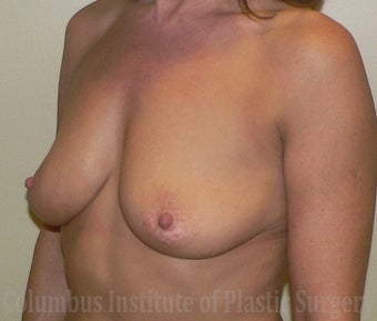 50 Year Old Woman has Breast Augmentation before 1269383