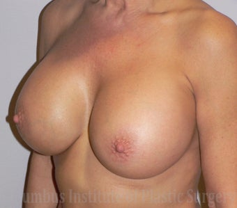 50 Year Old Woman has Breast Augmentation after 1269383