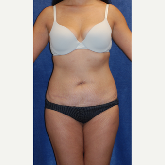 35-44 year old woman treated with Tummy Tuck before 3605031