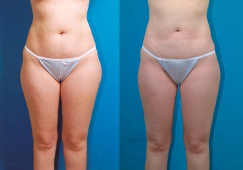 28-year-old woman treated with Liposuction. before 3287342