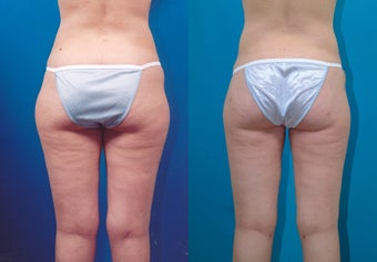 28-year-old woman treated with Liposuction. after 3287342