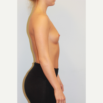 18-24 year old woman treated with Breast Augmentation before 3027218