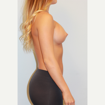 18-24 year old woman treated with Breast Augmentation after 3027218