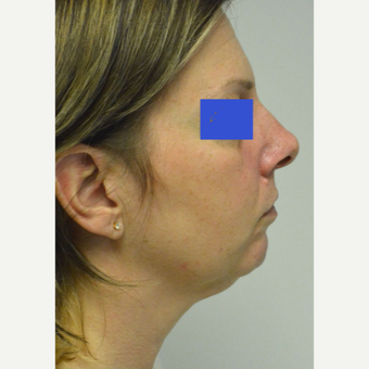45-54 year old woman treated with Kybella before 3500777