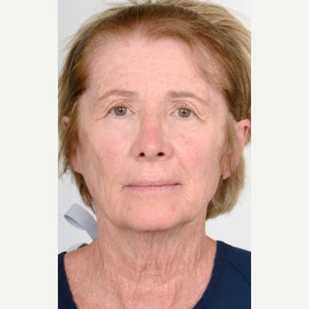 55-64 year old woman treated with Neck Lift before 1563954