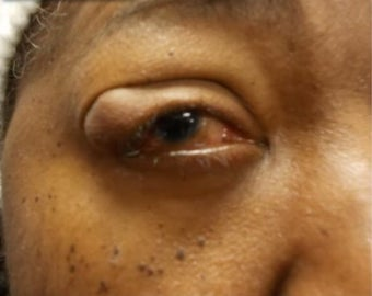 35-44 year old woman treated with Eyelid Surgery before 3238885