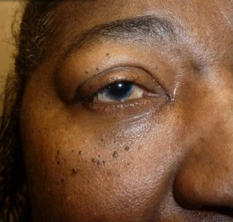 35-44 year old woman treated with Eyelid Surgery after 3238885