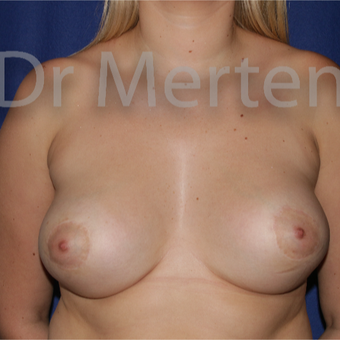 Tuberous breast/asymmetry treated with breast lift with implants after 3595421