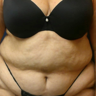 65-74 year old woman treated with Liposuction before 3568237