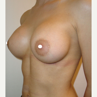 25-34 year old woman treated with Breast Augmentation after 3244127