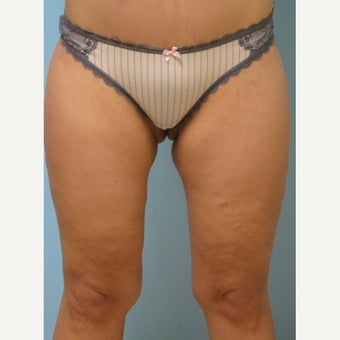 45-54 year old woman treated with Thigh Lift after 1979661