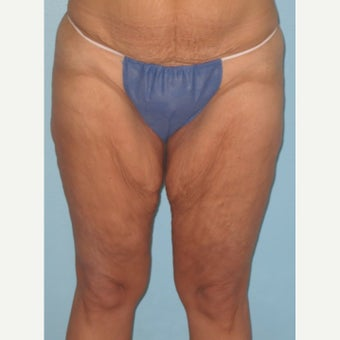 45-54 year old woman treated with Thigh Lift before 1979661