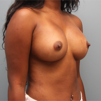 26 year old had Breast Augmentation with 435cc Sientra Silicone Implants after 3544282