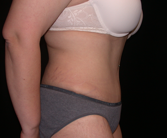 Tummy Tuck after 275751