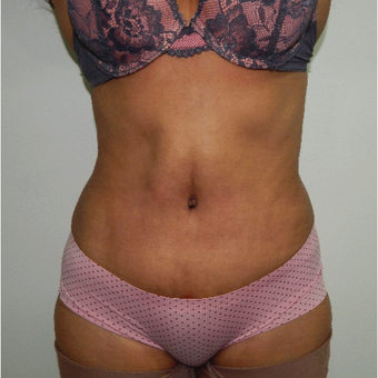 35-44 year old woman treated with Tummy Tuck after 3370519