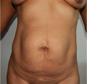 35-44 year old woman treated with Tummy Tuck before 3370519