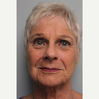 75 year old woman treated with Facelift before 3442670