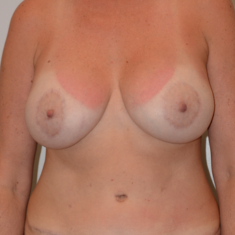 45-54 year old woman treated with Breast Lift with Implants after 3440922