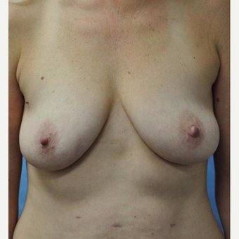 45-54 year old woman treated with Breast Lift with Implants before 3440922