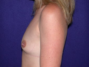 Breast Augmentation before 204621