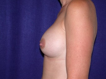 Breast Augmentation after 204621