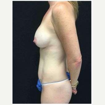 35-44 year old woman treated with Mommy Makeover 4 months post op after 3185535