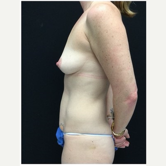 35-44 year old woman treated with Mommy Makeover 4 months post op before 3185535