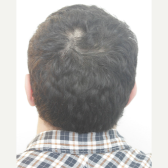 25-34 year old man treated with FUE Hair Transplant after 3068875