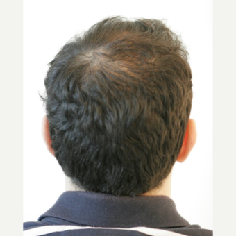 25-34 year old man treated with FUE Hair Transplant before 3068875