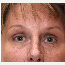 35-44 year old woman treated with Botox after 3604275