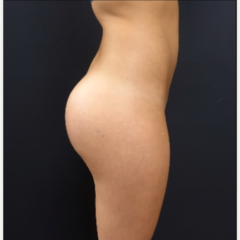 25-34 year old woman treated with 548cc Silicone Butt Implants after 3033266