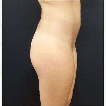 25-34 year old woman treated with 548cc Silicone Butt Implants before 3033266