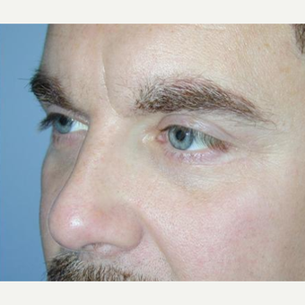 Eyelid Surgery after 3241577