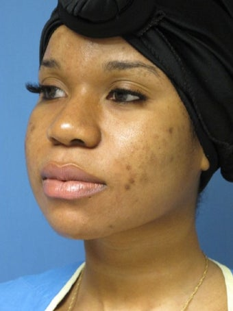 25-34 year old woman treated with African American Rhinoplasty before 1569709