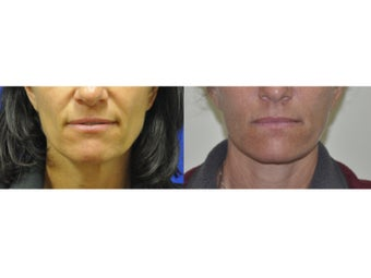 Lower Facelift/Necklift and Fat Transfer before 519070