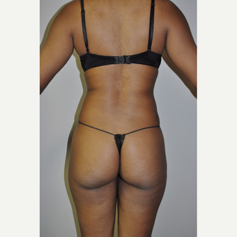 25-34 year old woman treated with Liposculpture before 3780471
