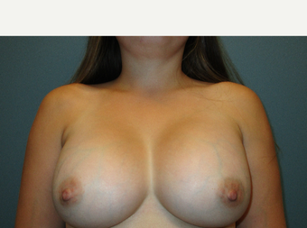 25-34 year old woman treated with Breast Implants after 3769753